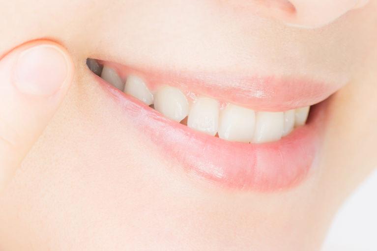 憧れの輝く白い歯、表情が明るくなります